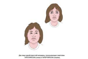 лица женщин с заболеванием щитовидной железы