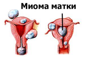 болезнь матки схема
