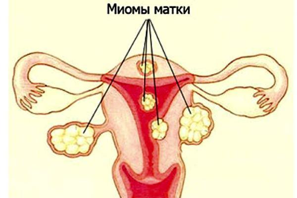 миомы