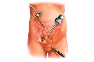 операция на женском органе картинка
