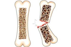 картинка здоровая и сломанная кость