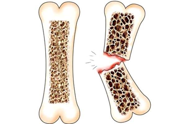 Профилактика остеопороза у мужчин при климаксе и в пожилом возрасте