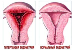 разрастание эндометрия в женском органе