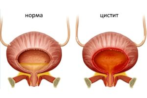 Лечение цистита у женщин при менопаузе