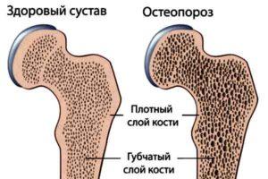 рисунок нормальная и хрупкая костная ткань