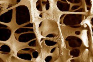 увеличенная костная структура