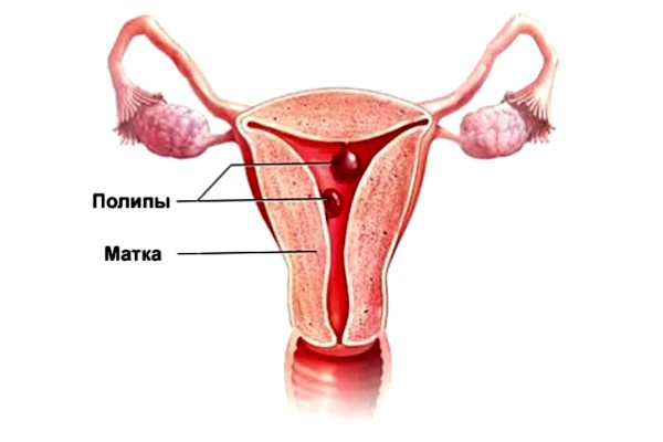 Как лечить полипы эндометрия народными средствами