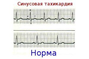 распечатка кардиограммы с тахикардией