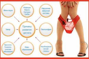 таблица причины заболевания мочевыделительной системы