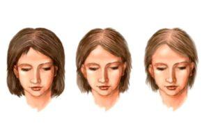 три женщины с разной шевелюрой