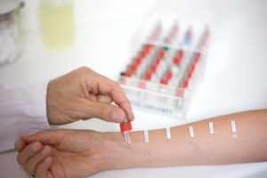 тест на руке на аллергены