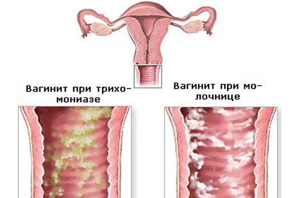 вагинит