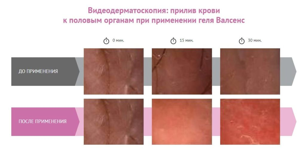 Видеодерматоскопия исследование валсенс